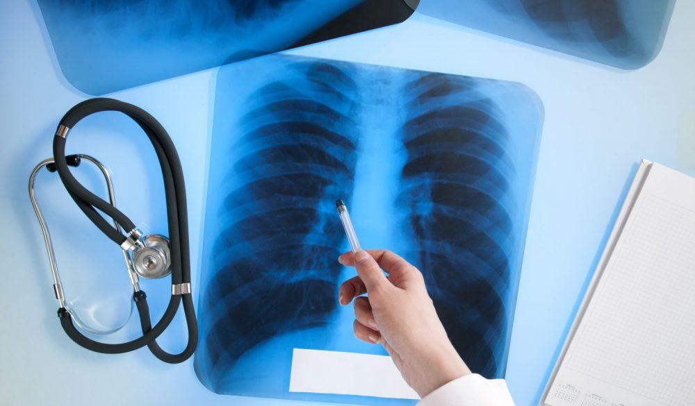 Рентген легких и костной системы после Covid-19